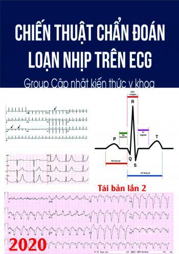 Chiến thuật chẩn đoán loạn nhịp trên ECG
