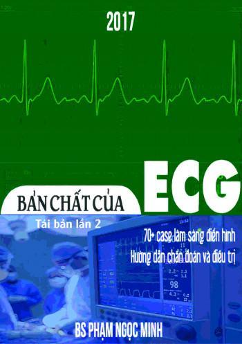 Bản chất của ECG